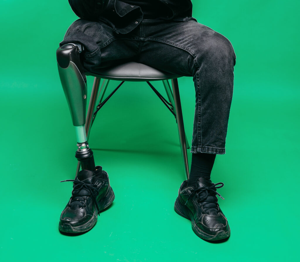 A man with a prosthetic leg sitting in a chair.