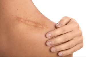 close up photo of a large scar on a woman's shoulder from a shoulder injury after a car accident