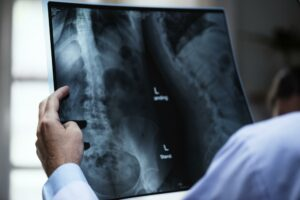 A doctor inspects x ray images of a patient's spine which looks to be curved painfully and could indicate degenerative disc disease.