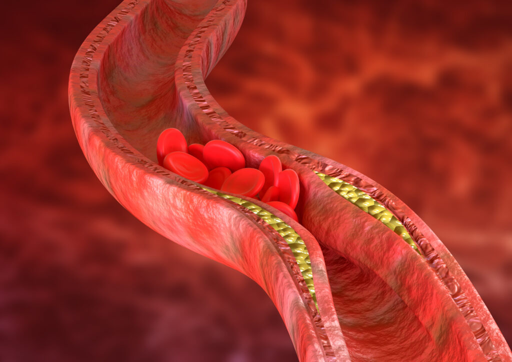 Atherosclerosis is an accumulation of cholesterol plaques in the walls of the arteries, which causes obstruction of blood flow.