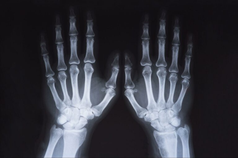 X-ray image of hands and wrist.